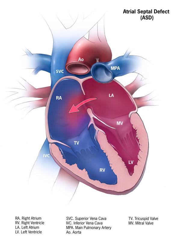 CCB-Beteiligung bei der Jahrestagung der Kardiologen 2012 in Mannheim